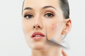 3 sesiones de tratamiento anti-manchas e iluminador
