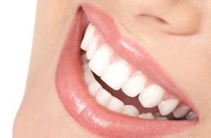 Blanqueamiento dental con Led en Gros